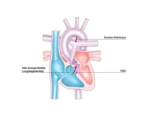 Pulmonalis Atresie Met Vsd